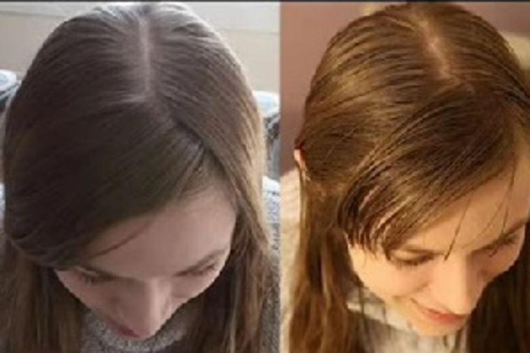 Foto: Youtube / Printscreen / Nakon pranja sodom bikarbonom (levo) i nakon 20 dana eksperimenta (desno)