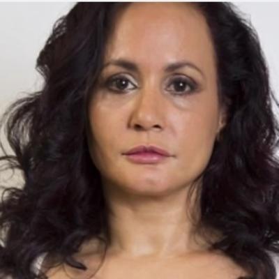 40 godina se nije nasmejala da ne bi dobila bore: Da li joj se isplatilo? (FOTO)