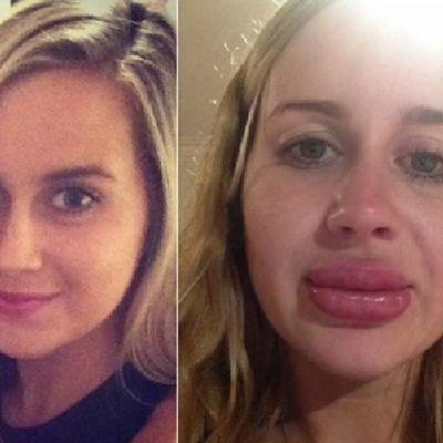 Britani (24) pre i posle povećanja usana: Sada cenim ono što mi je priroda dala! (FOTO, VIDEO)