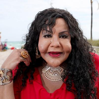 Ubrizgala joj cement u lice: Postala nakaza zbog lekara bez licence! (FOTO)