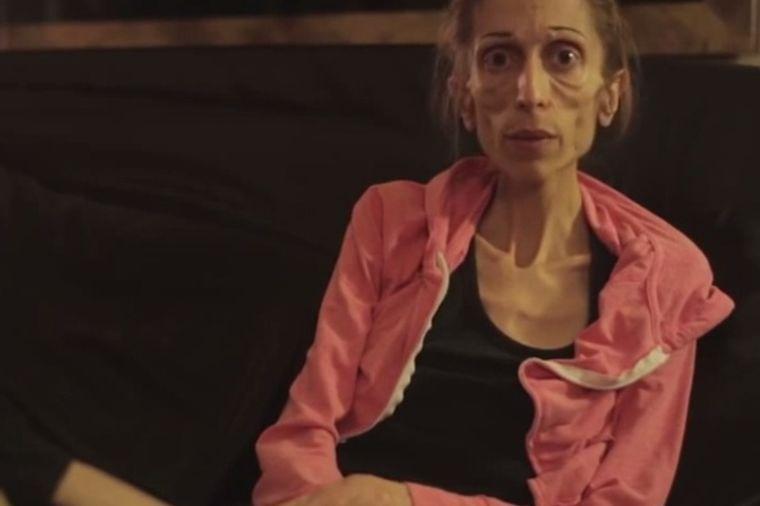 Vapaj anoreksične glumice: Umirem, imam samo 18 kg! (VIDEO)