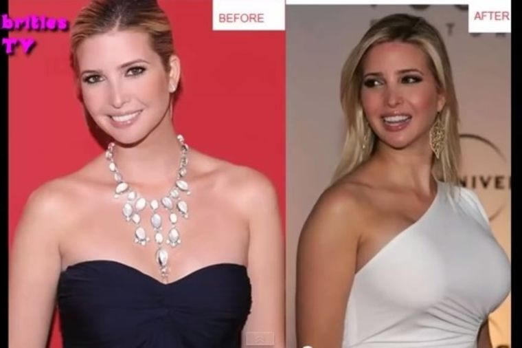 You Tube / Printscreen / Celebrities Plastic Surgery