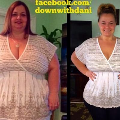 Zbog debljine joj lekar rekao da će umreti: Smršala neverovatnih 75 kg, evo kako! (FOTO)