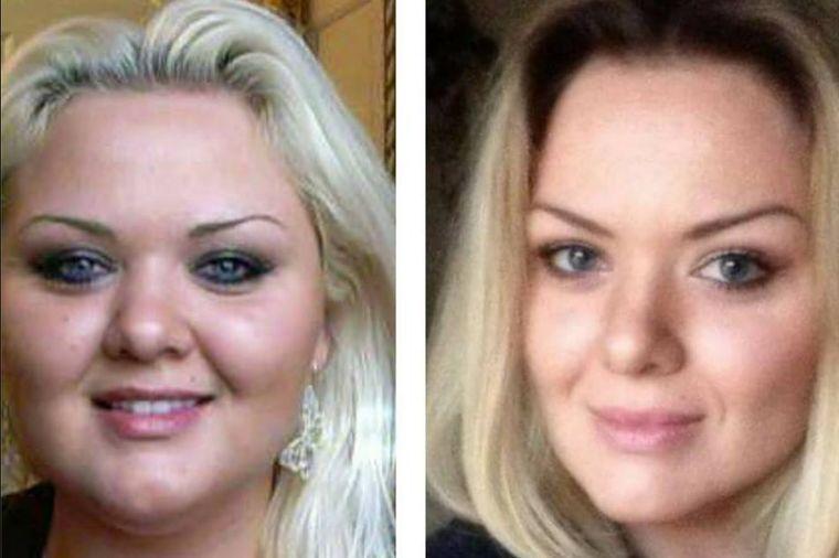 Bivšem sam bila debelo smeće: Iz osvete smršala 60 kg i postala lepotica! (VIDEO)