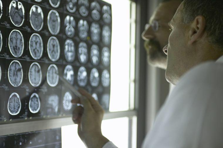 Doktor kategorično tvrdi i nudi lek: Kad imate dovoljno ovog vitamina, ne možete da dobijete rak!