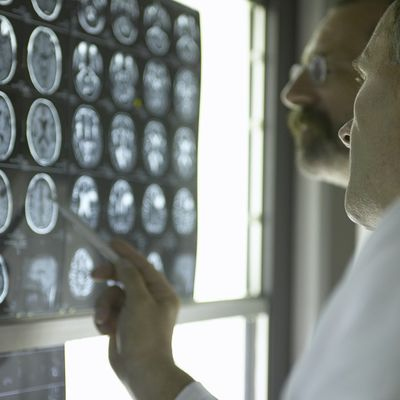 Italijanski lekari tvrde: Multipla skleroza prvo nastaje u crevima, evo zašto!