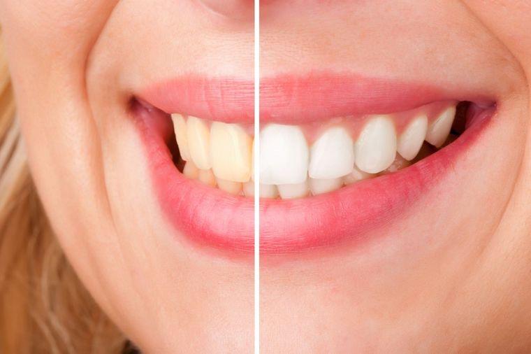 Magični prah za izbeljivanje zuba: Blistavo beli zubi za 10 minuta! (RECEPT)