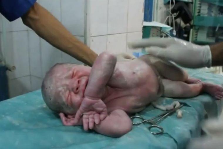 Oživeli bebu u sred bombardovanja: Snimak od kojeg bi i kamen zaplakao! (VIDEO)