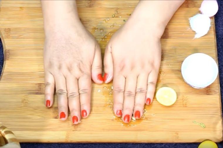 Žena otkrila čudesan recept: Kako da skinete staračke mrlje i fleke sa ruku! (VIDEO)