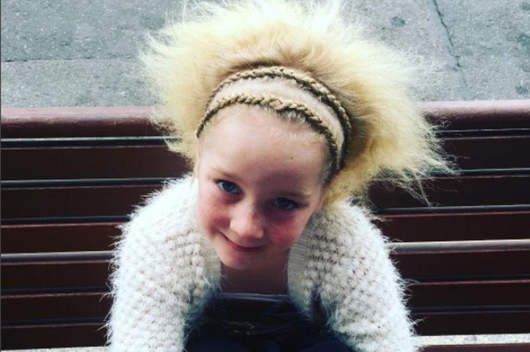 Redak poremećaj je učinio najpopularnijom: Zašto ovu devojčicu zovu mali Ajnštajn (FOTO)