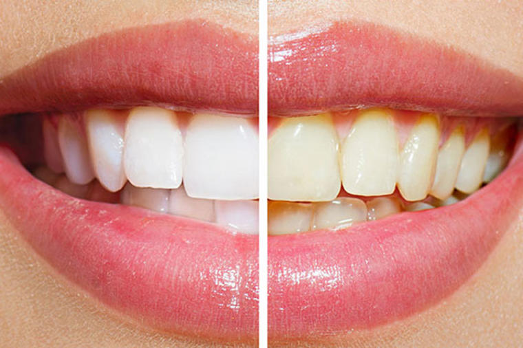 Izbeljivanje zuba folijom i sodom bikarbonom