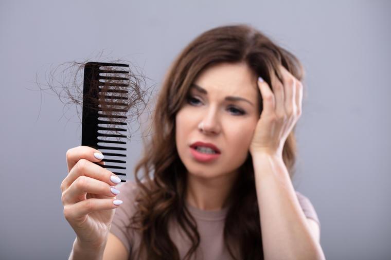 Slikovni rezultat za opada kosa